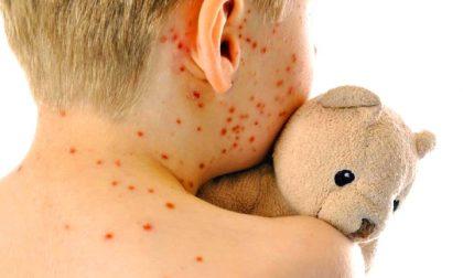 Carate, il virus del morbillo torna a far paura