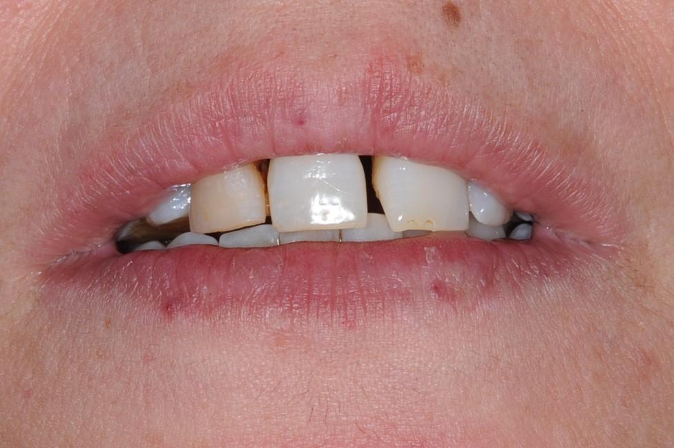 Dentista a Vimercate, studio del dottor Paolo Arosio