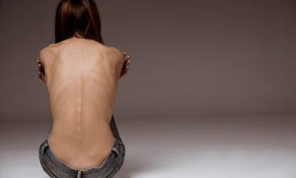 Anoressia e bulimia nei ragazzi incontro al Teatro Villoresi