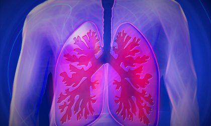 Tubercolosi polmonare, due casi correlati a Saronno