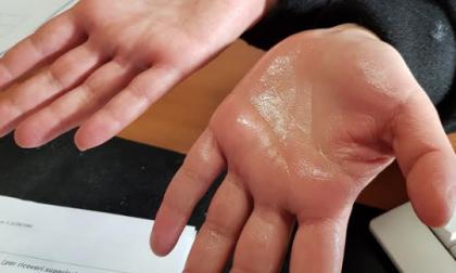 Mani sudate addio: al San Gerardo la cura grazie alla clip