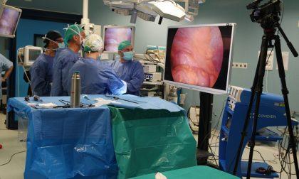 A Desio primo caso di chirurgia totalmente laparoscopica