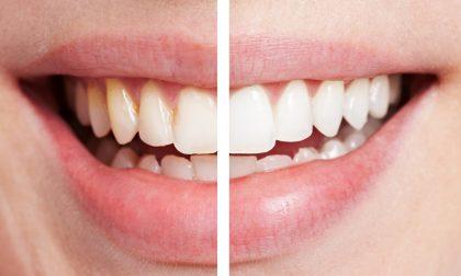 Sbiancamento dentale professionale per denti macchiati e ingialliti: scopri cause e soluzioni per le macchie sui denti